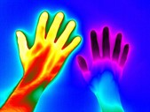 Wellcome Images - Raynaud's Phenomenon